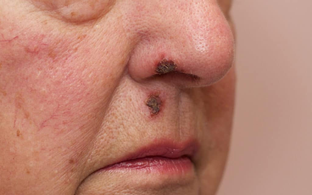 Can Smoking Weed Cause Impetigo?